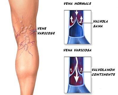 Thrombophlebitis postin vigore delle estremità più basse