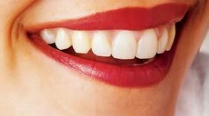 sbiancare-i-denti-per-un-sorriso-brillante